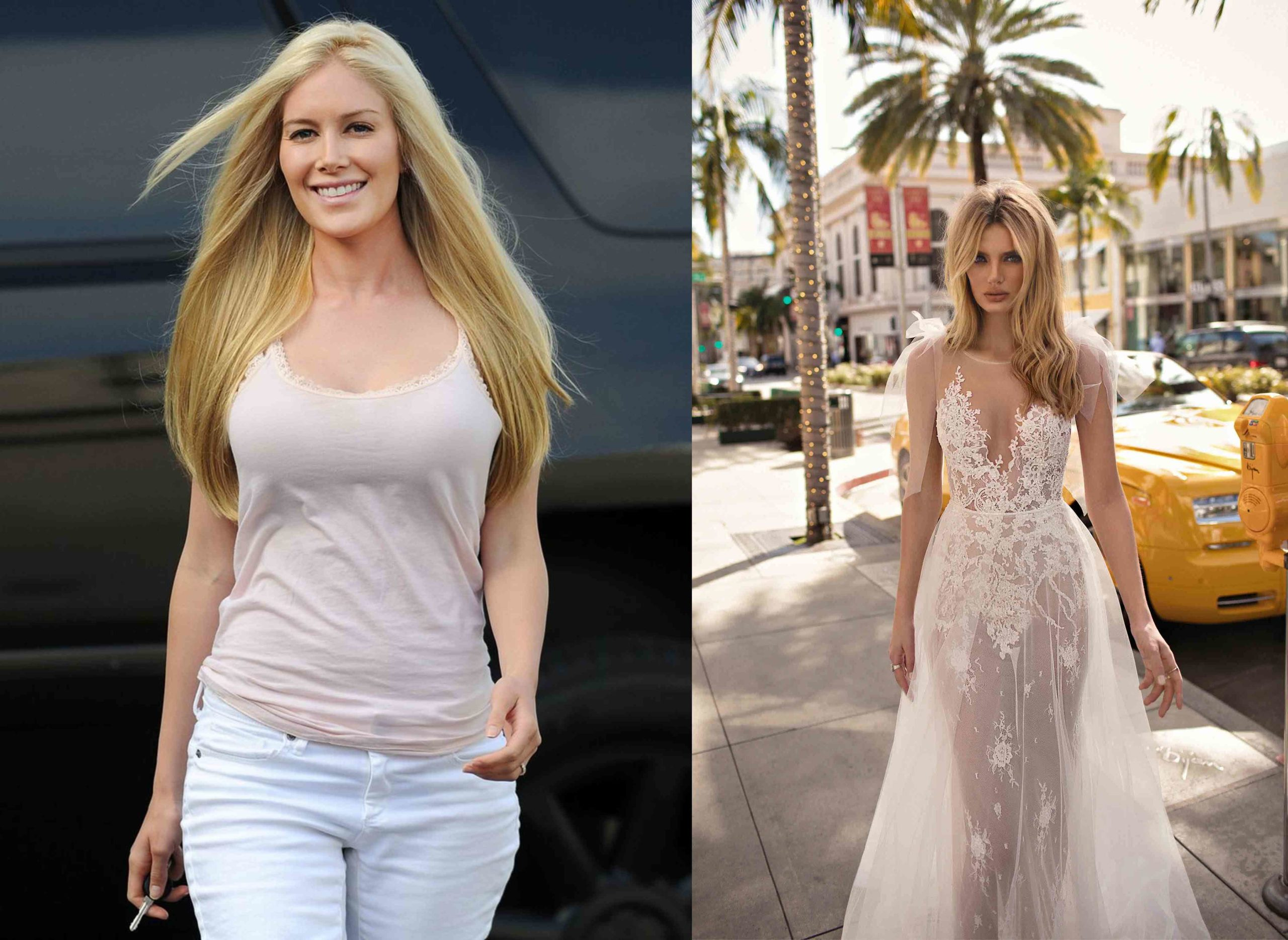 heidi montag surgery scaled