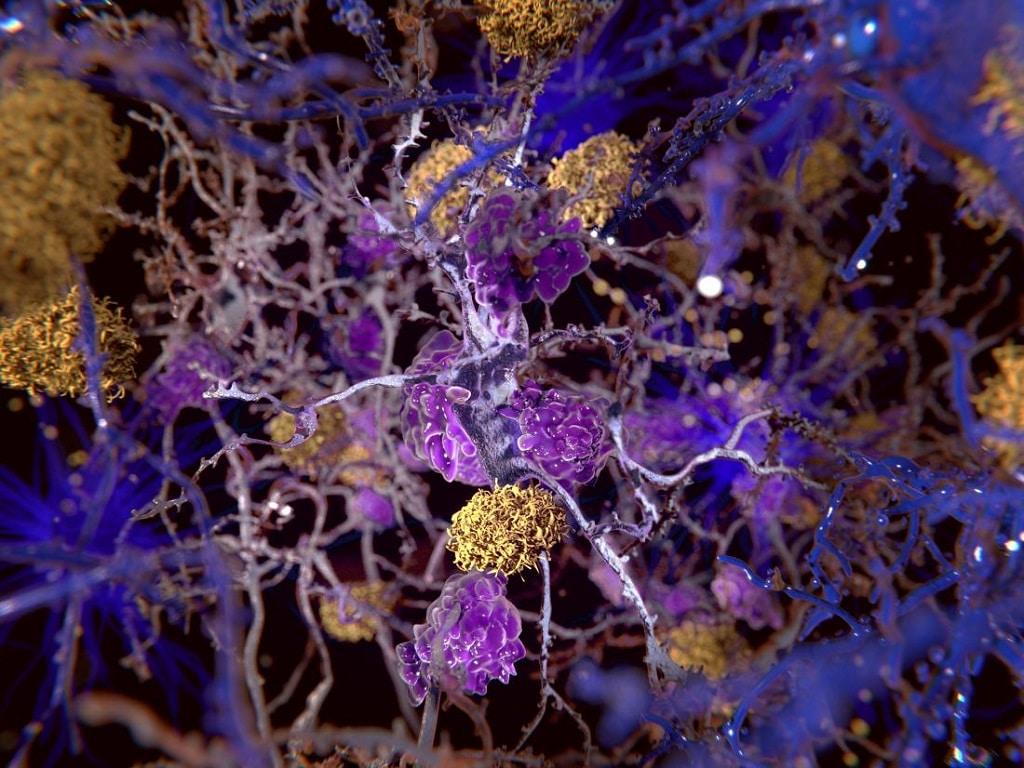 alzheimer agysejtek agykutatas